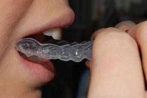 Foto de Clareamento Dental Caseiro com Moldeira