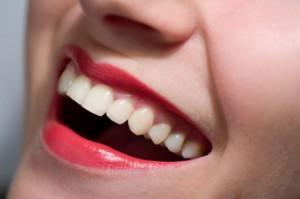Clareamento Dental – Preço